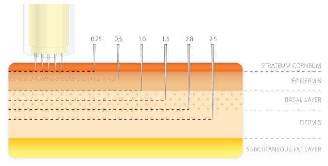 phi lings microneedling malmö